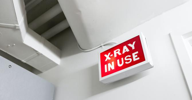 Dr. Britt, Are you not going to take x-rays?  image